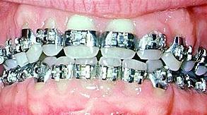 Aparelho ortodontico so com bandas