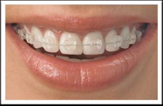 bracket ortodontico ceramica