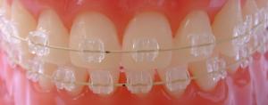 bracket ortodontico safira