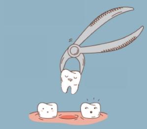 cartoon extração dentaria