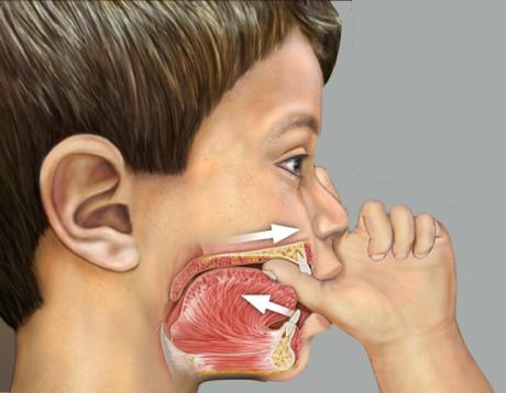 efeito chupar dedo sobre os dentes