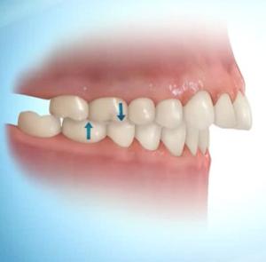 dentes para frente