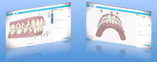 Através do clincheck, todos os movimentos dentários são calculados previamente ao tratamento ortodôntico